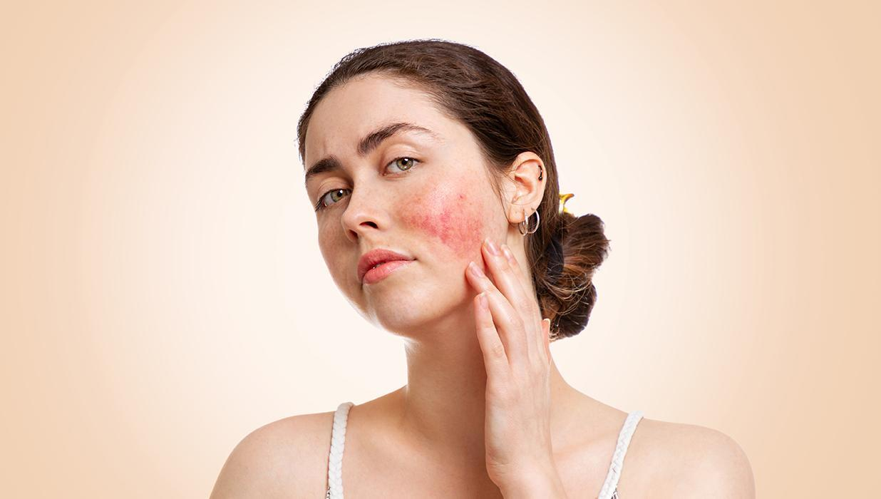 The Cosmeceutical Approach to Rosacea